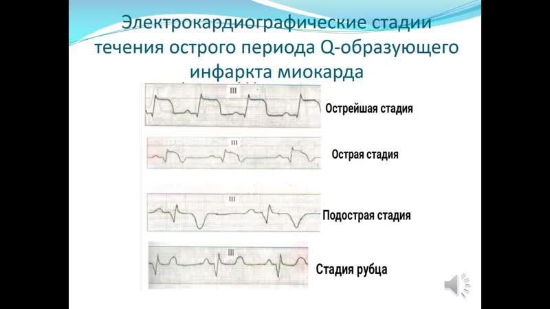 ЭКГ при ишемической болезни сердца Артемова Н М