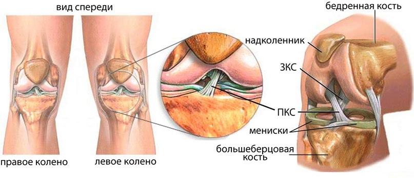 Повреждение мениска коленного сустава реферат 7856