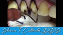 Impression Cord Placement on Posterior Crowns Dental Minute with Steven T Cutbirth DDS