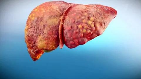 Какая связь между гепатитом В и ВИЧ?