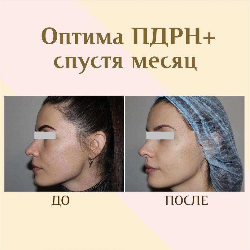 ПДРН в косметологии, изображение №4
