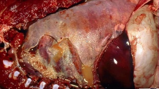 Патологоанатомия органов дыхания: Бактериальная болезнь лёгких лошадей, крс и птиц / Gross Path of the Respiratory System 6 - Bacterial Lung Disease of Horses, LIvestock, and Poultry