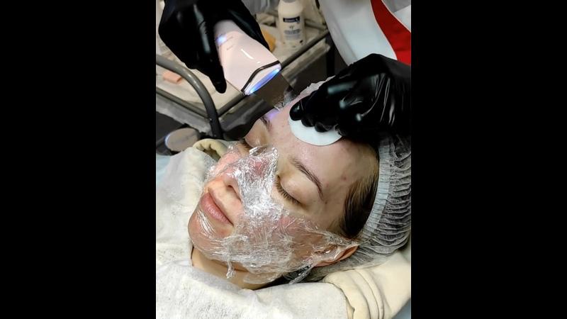 Видео от Лазерная эпиляция косметология Купчино Звездная